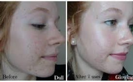 Skin Soft Smooth